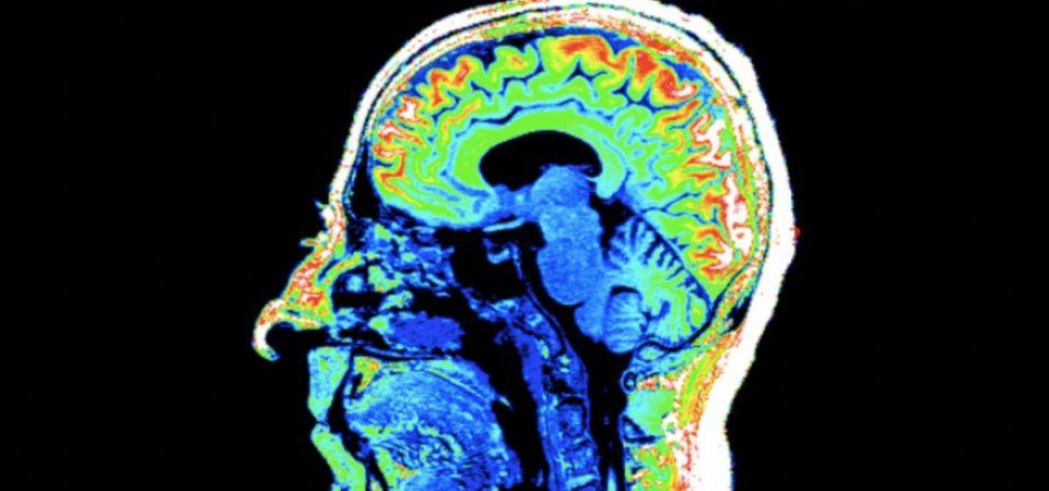 Il cervello, affascinante mistero: impariamo a conoscerlo