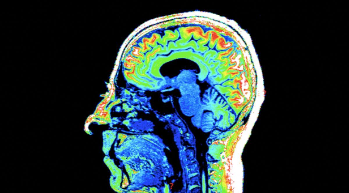 Brainshot, cervello