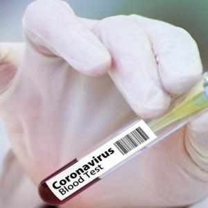 Il vaccino Usa fa flop e in Borsa torna la paura
